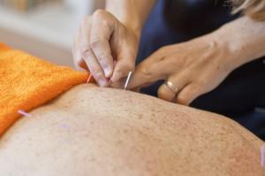 Akupunktur in der chinesischen Gesundheitspraxis in Siebnen